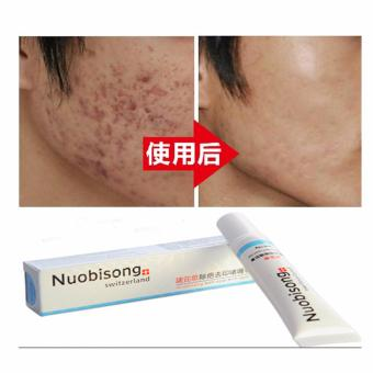 do it yourself hb nuobisong whitening face cream stretch mark hb nuobisong whitening face cream stretch mark acne scar whitening removal cream solutioingenieria Images