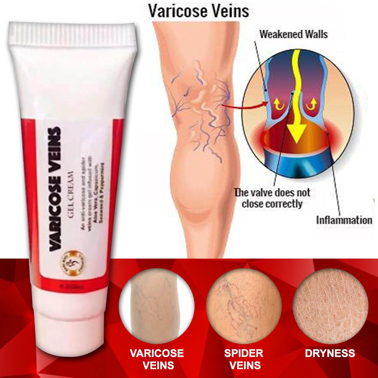 anti varicose cream