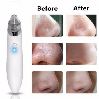 1PCS Cleaner Machine + 4PCS Suction head Electric Black head Cleaner Acne Remover Facial Pore Blemish Cleanser Tool Kit White - intl