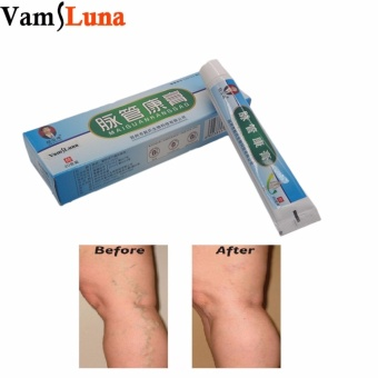 5pcs/pack Spider Vein Varicose Veins Cream For Leg - Chinese Medicine For Vein Away Poor Leg Poor Leg Circulation No Need For Surgery - intl