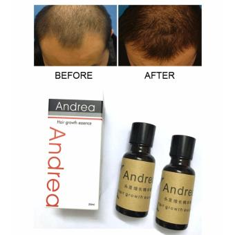 Authentic! Set of 2 ANDREA Hair Growth Essence Hair Grower Hair Conditioner Essence Hair Loss Treatment for Men and Women 20ML