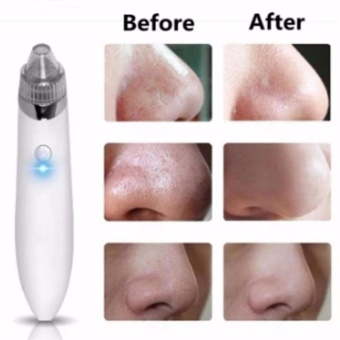 Blackhead Suction Remover USB Charging Facial Pore Cleanser SkinCare Machine White - intl