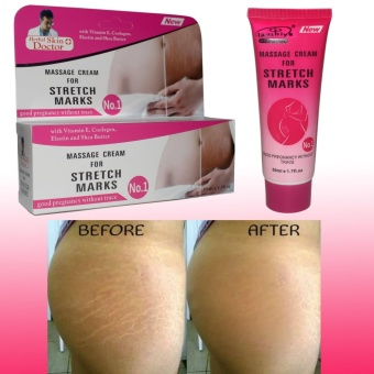 Herbal Skin Doctor Massage Cream for Stretch Marks 50ml