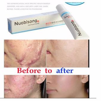 HM Nuobisong Whitening Face Cream (Stretch Mark Acne Scar Whitening Removal Cream)