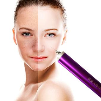 New Arrival Laser Spot Removal Pen. Skin Spot Remover Electric Cautery Spot Removal Machine. Face Spa Device Massage - 2