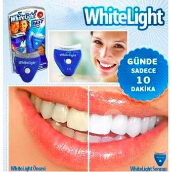 New Proven Effective White Light Teeth Whitening (IMPORTED) Price Philippines