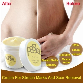 Stretch Marks Repair Cream Pasjel Famous Thailand Maternity Products Whitening - intl Price Philippines