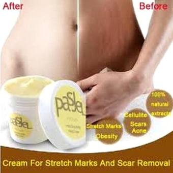Sunshop Thailand Remove Scar Stretch Cream Marks Care Postpartum Maternity Skin Body Repair - intl