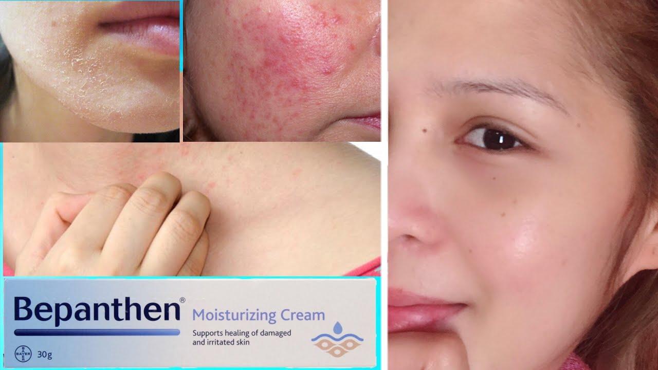 Bepanthen Moisturizing Cream 30 Grams Lazada Ph